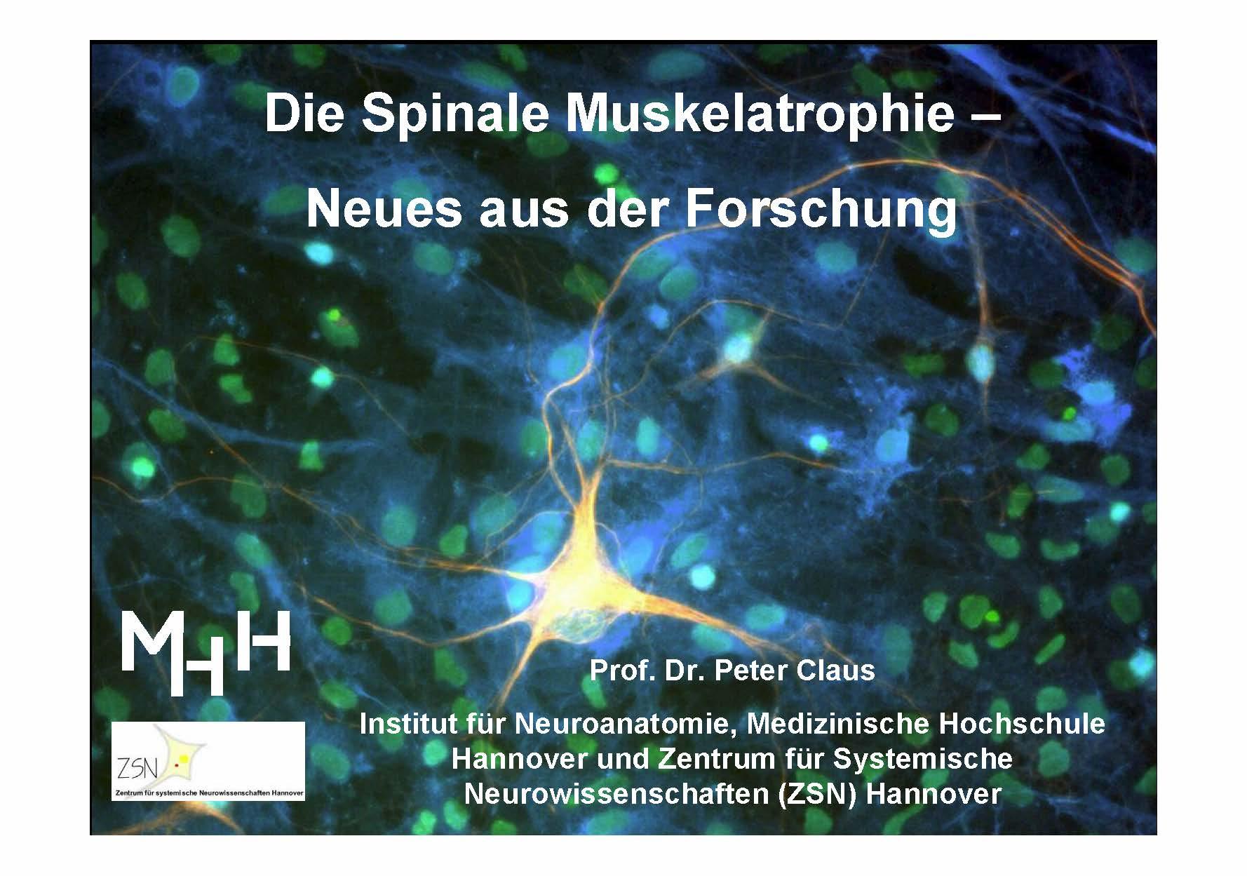 Vortrag Prof. Dr. Peter Claus, MHH, SMA-Treffen Hochwald September 2012
